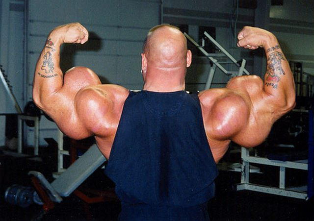 another-synthol-victim-640-03