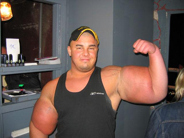 synthol-biggest-freak