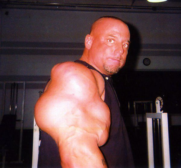victims-of-synthol-24