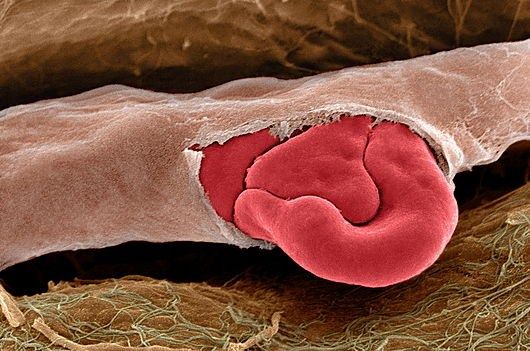Ruptured capillary. Coloured scanning electron micrograph (SEM) of a red blood cell squeezing out of a torn capillary. A capillary is the smallest type of blood vessel, often only just large enough for red blood cells to pass through. Red blood cells (erythrocytes) are biconcave, disc-shaped cells that transport oxygen from the lungs to body cells. The oxygen transfer occurs in capillaries, where carbon dioxide is also removed and then taken to the lungs for exhalation. Red blood cells are the most abundant cell in the blood. They have no nucleus and are about 7 micrometres across.